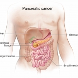Affordable Pancreatic Cancer Surgery in India: Multispecialty healing for Global Patients