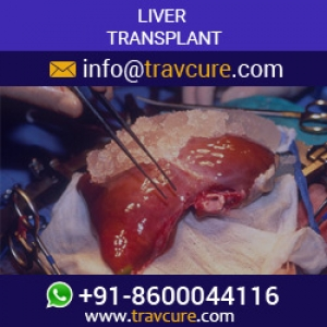 Get a new Chance at Life with Liver Transplant