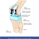 Avail Low-Cost Knee Replacement Surgery in India