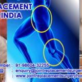 Best deal for Low cost Hip Replacement Surgery in India with Joint Replacement Consultants